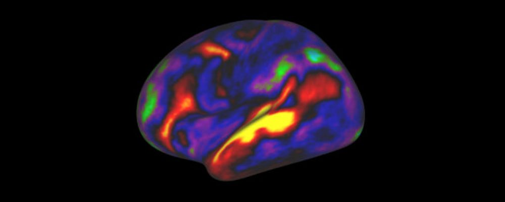 A New Map of the Brain Redraws the Boundaries of Neuroscience